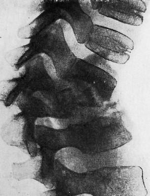 Обширная костная деструкция (разрушение) тел позвонков