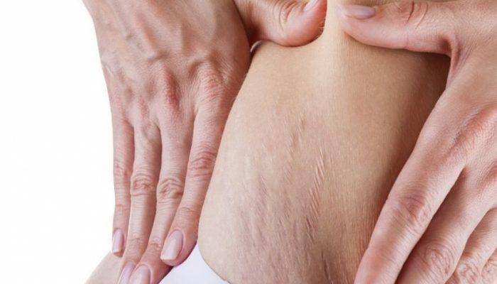 Контрактубекс при беременности от растяжек
