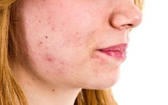 Вульгарные угри: причины и лечение