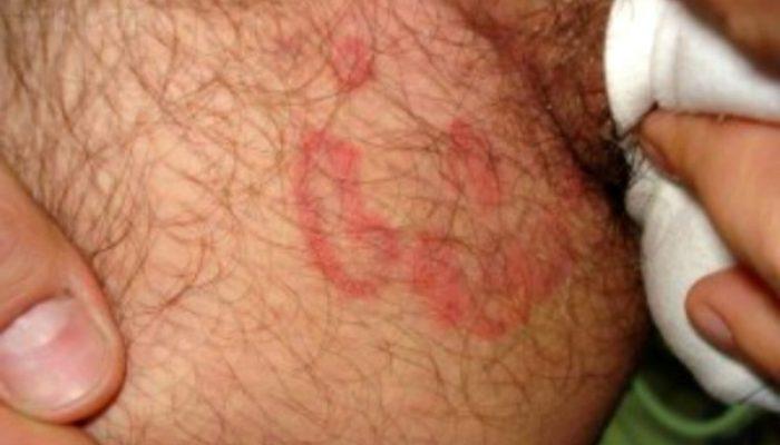 Симптомы и лечение паховой эпидермофитии: доступная информация о болезни