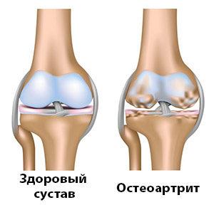Здоровый сустав и сустав при остеоартрите