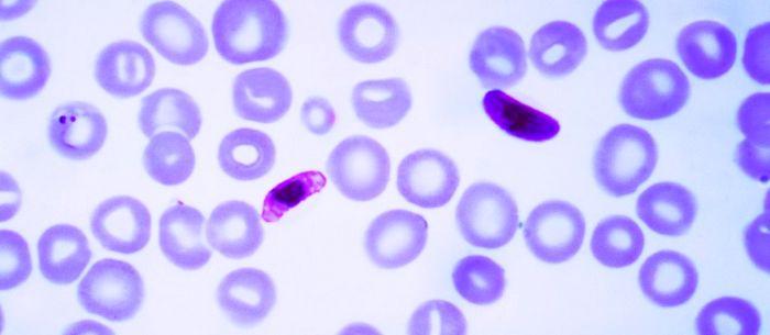 Plasmodium falciparum (фото) - являющийся возбудителем малярии