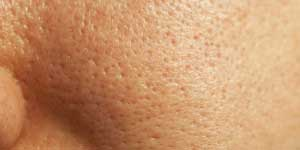 Какие существуют средства для сужения пор на лице?