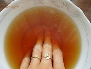 Лечение грибка на пальцах рук народными средствами