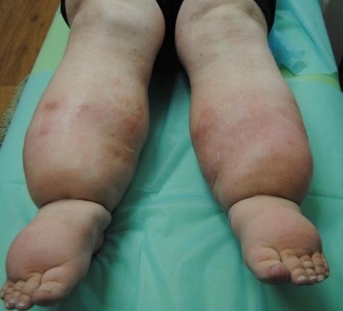 Слоновость ног: причины и лечение