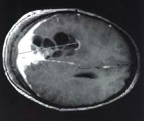Кисты головного мозга различных типов (I, II и III по Nauta)