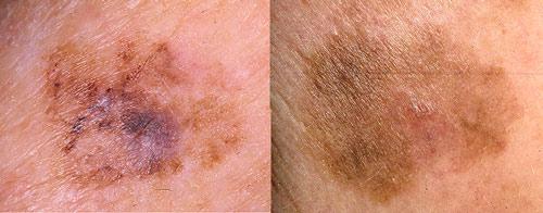 Предраковый меланоз Дюбрея или злокачественное лентиго
