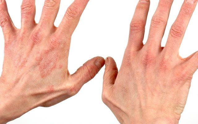 Что такое аллергический дерматит? Симптомы и способы лечения распространенной болезни