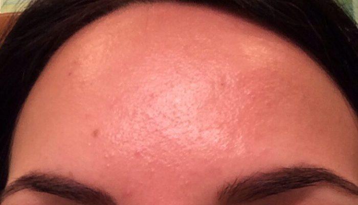 Как предотвратить и лечить аллергию на краску для волос? Простое решение частых проблем