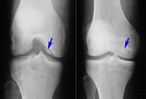 Ревматоидный артрит коленного сустава: лечение