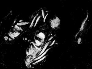 Закупорка кишечника человека клубком аскарид