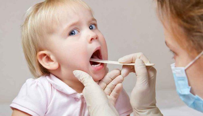 Почему возникают прыщи во рту у взрослых и детей и нужно ли их лечить? Эксперты отвечают на вопросы