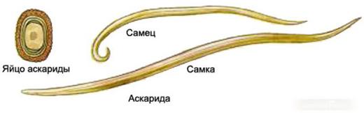 Как выглядят аскариды — фото