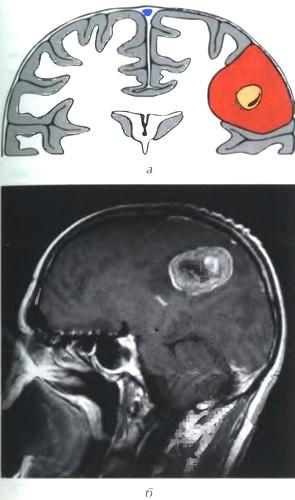 Кистозная менингиома I типа (по Nauta)