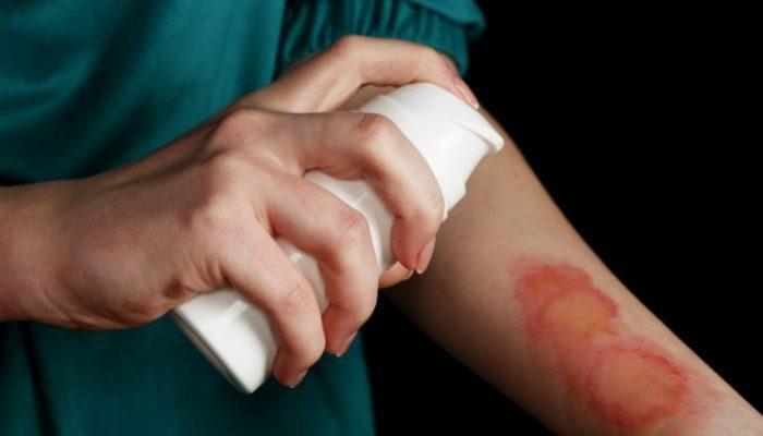 Народные средства или лекарства: чем обработать ожог в домашних условиях?