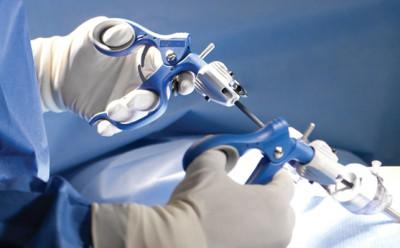 Виды лапароскопических операций на почках