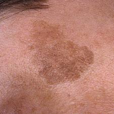 О чем свидетельствуют темные пятна на коже?