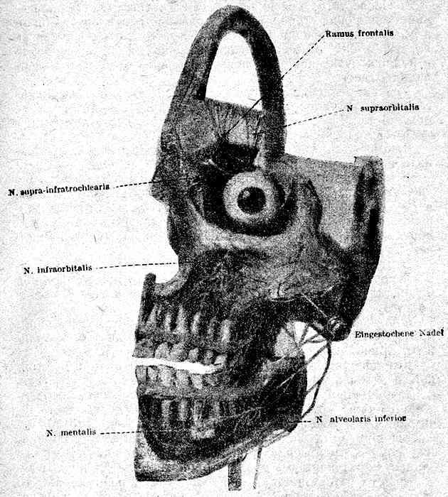 Направление иглы при блокаде n. mandibularis тройничного нерва в foramen ovale