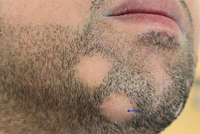 Как проявляется дерматофитоз на бороде