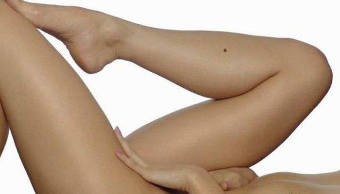 Родимое пятно на бедре и голени: симптомы и лечение