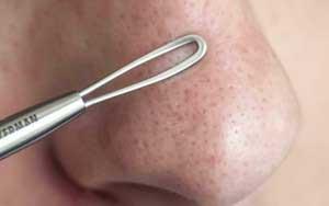 Как вывести черные точки на носу?