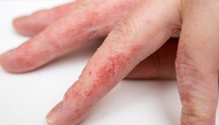 Как проявляется аллергия на латекс?