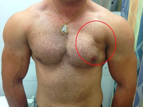 Разрыв грудной мышцы