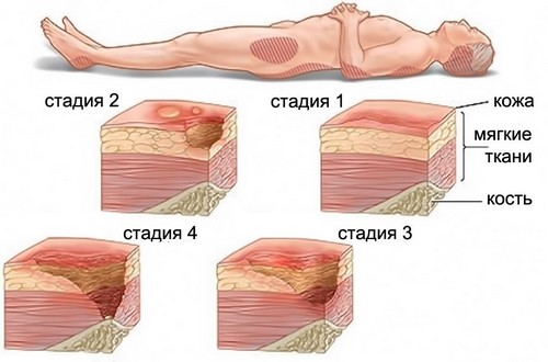 4 стадии развития пролежней
