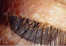 Вши на ресницах и бровях: симптомы и эффективные способы лечения