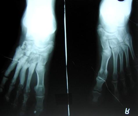 Рентгенологическая картина мелореостоза