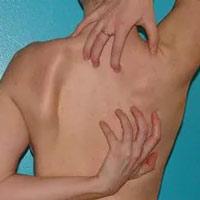 Почему беспокоит кожный зуд на спине