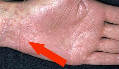 Небольшие зудящие красные пятна, которые сохнут и шелушатся