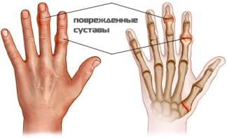 Поврежденные суставы рук