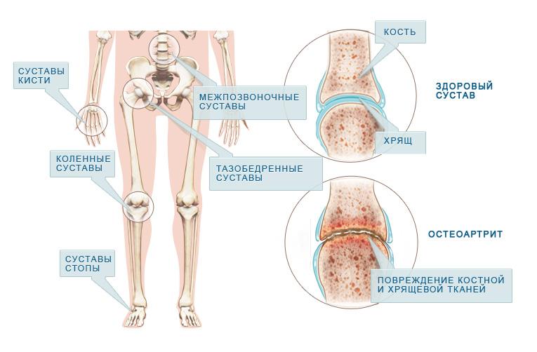 классификация ревматоидного артрита