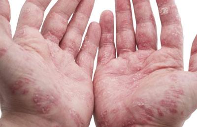 Как выглядят красные пятна на коже рук при заболевании псориаз