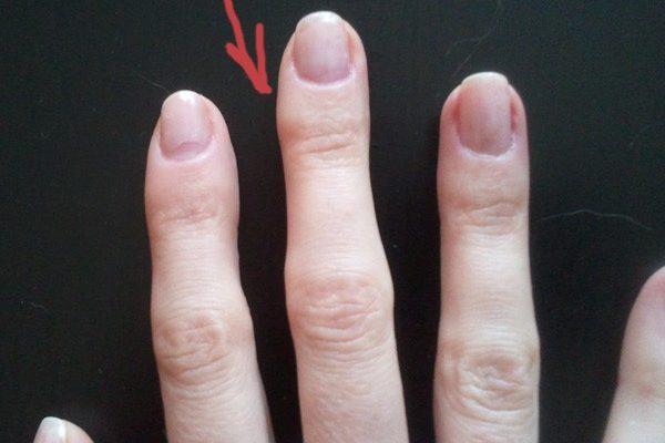 Шишка на пальце от ручки: лечение мозоли
