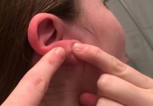Почему черные точки, красные и белые прыщи появляются на ушах