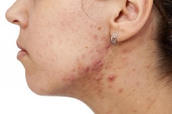 причины появления угрей на шее у женщин