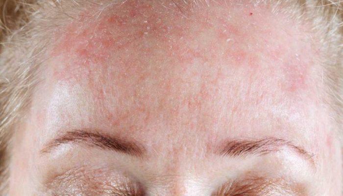 Может ли быть псориаз на лице? Локализация, симптомы и эффективные способы избавления