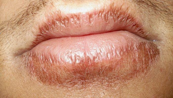 Дерматит на губах (хейлит): лечение