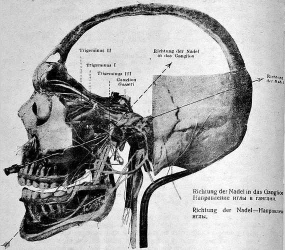 Блокада третьей пары тройничного нерва у foramen ovale