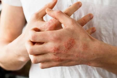 Проявления аллергии на латекс