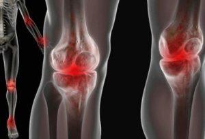реактивный артрит коленного сустава и его лечение