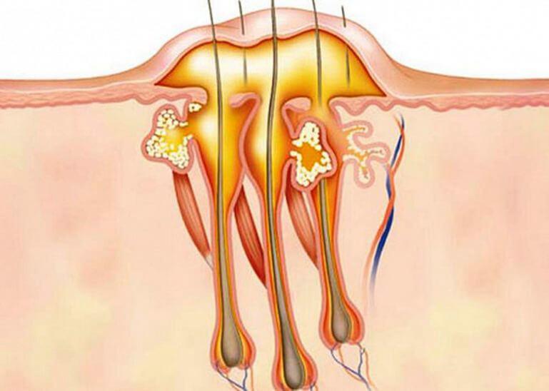 Что такое сучье вымя? Причины, симптомы и лечение гидраденита