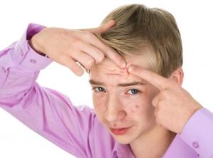 Почему у подростков появляются угри