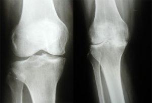 Острый артрит: диагностика
