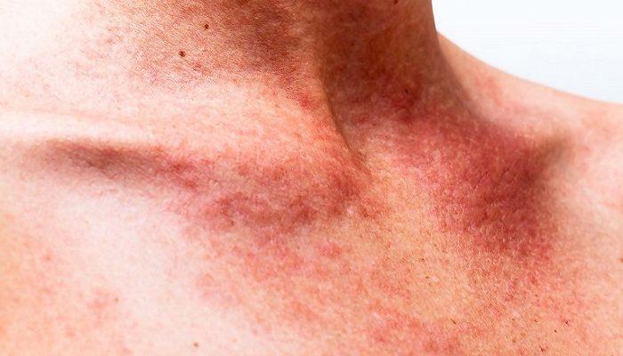 Петехии на коже: причины