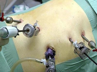 Протекание операции