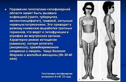 Гипофизарная кахексия (болезнь Симмондса)