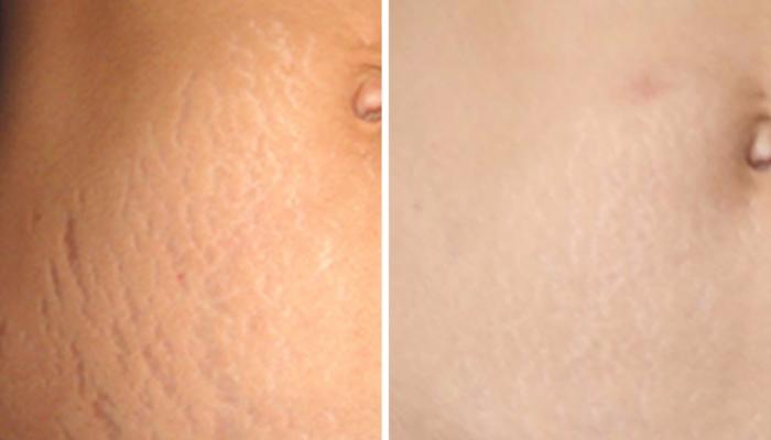 Растяжки: до и после лазера